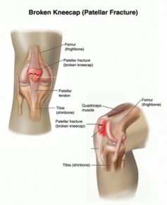 Figure 1. Broken Patella (kneecap)