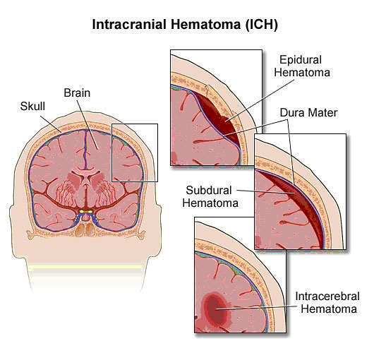 Figure 3. Intracranial Hematoma (ICH).