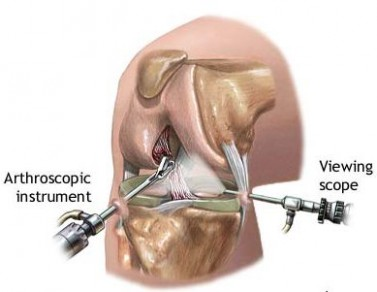 This illustration shows knee arthroscopy and repair.