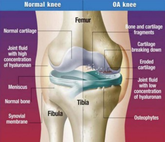 This illustration shows the difference between a normal and osteoarthritic knee.